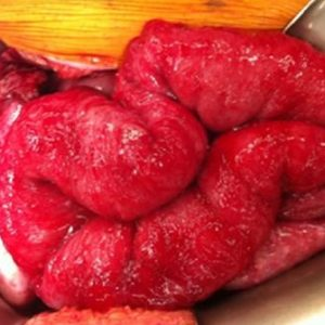 Peritonitis Karsinomatoza Nedir? Nasıl Tedavi Edilir?